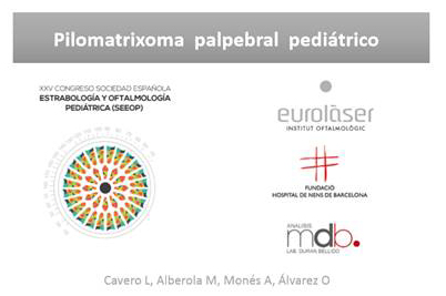 Presented the clinical case of Pilomatrixoma