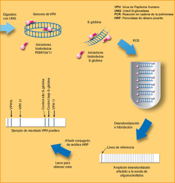 Analisis detección Virus Papiloma Humano